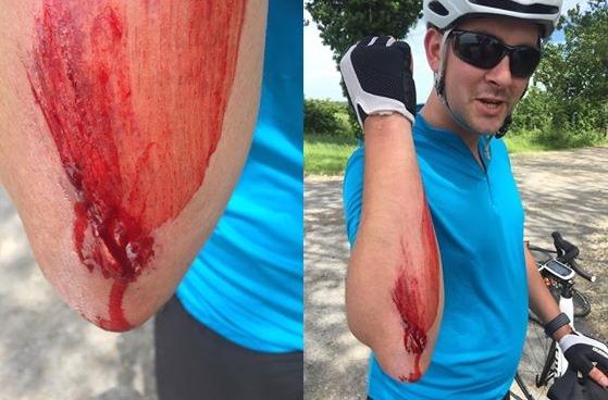 Bret's Accident